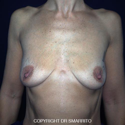 Ptôses sur seins creux vidés