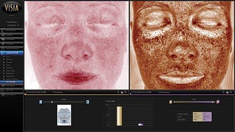 Bilan anti-âge de votre peau