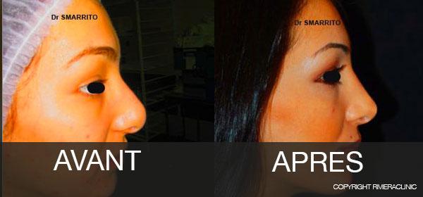 Résultat-de-rhinoplastie : Cas 3