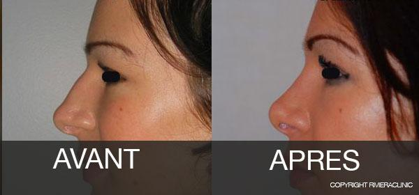 Résultat-de-rhinoplastie : Cas 2