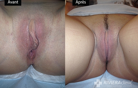 Résultat de nymphoplastie (Dr Smarrito)