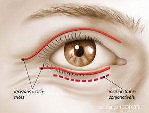 Les cicatrices de la blépharoplastie