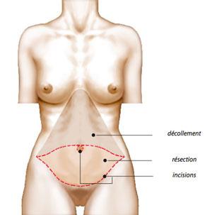 La plastie abdominale