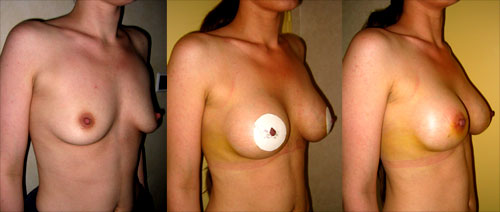 Plastie prothèse : Correction de ptôse légère
