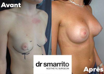 Augmentation mammaire avec prothèses rondes en Dual plan