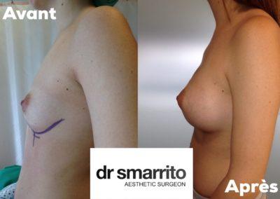 Augmentation mammaire avec des prothèses mammaires rondes 335 cc
