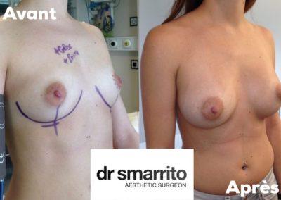 Augmentation mammaire avec des prothèses rondes 335 cc