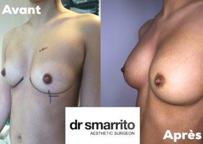 Augmentation mammaire avec des prothèses rondes profil moyen 300 cc