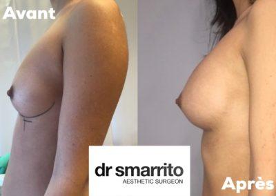 Augmentation mammaire en Dual plan avec des prothèses à profil moyen