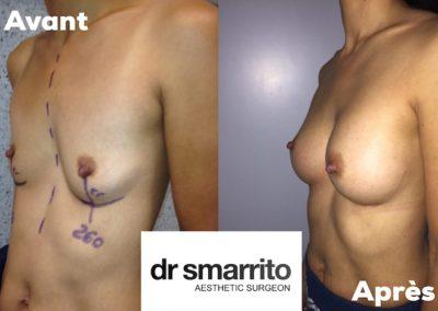 Résultat d'augmentation mammaire réalisée par le Dr Smarrito avec des prothèses anatomiques de volume 260 cc