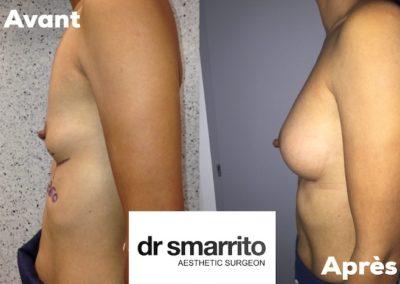 Augmentation mammaire avec prothèses anatomiques 260 cc