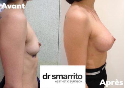 Augmentation mammaire avec prothèses anatomiques 300 cc