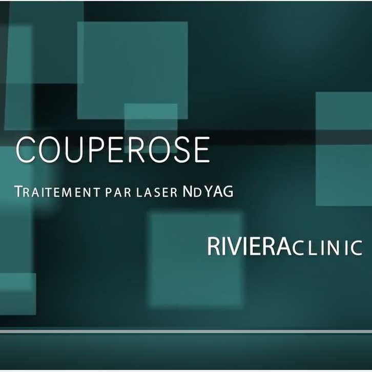 Nouvelle vidéo sur le traitement laser de la couperose