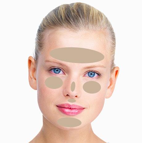 Zones du visage touchées par la couperose