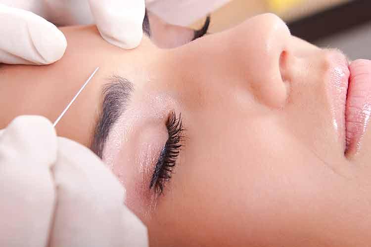 De nouvelles aiguilles pour le traitement par Botox®