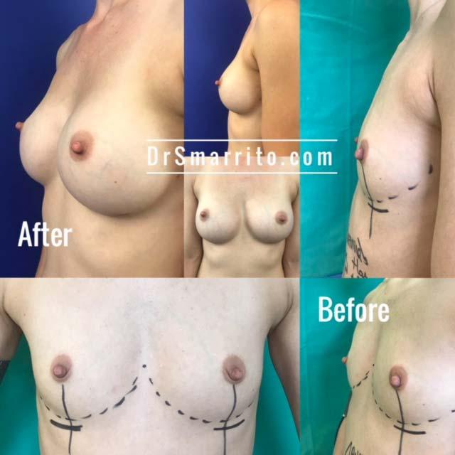 Site dédié à l'augmentation mammaire