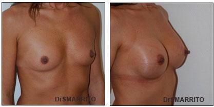 Résultat de pose d'implants mammaires